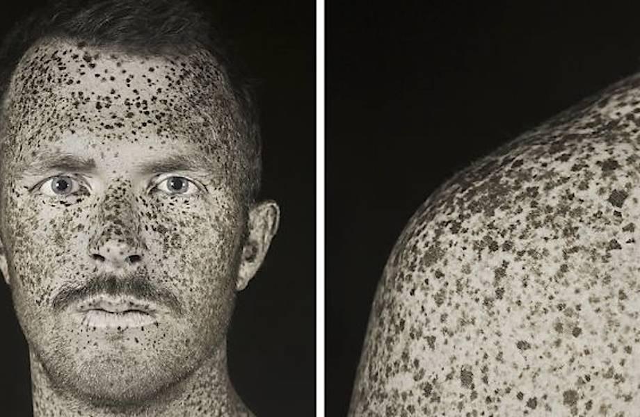 Инженер использует УФ-фотографию, чтобы показать, как солнце влияет на нашу кожу